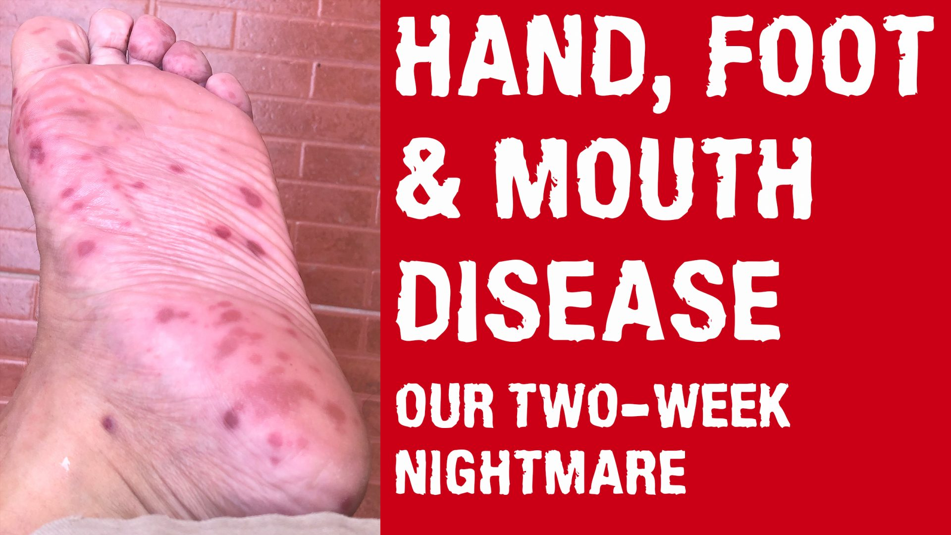 Hand, Foot, and Mouth Disease - Documentary